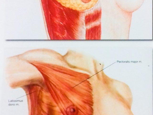Osteopatia e chirurgia ricostruttiva mammaria